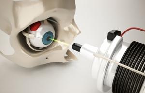 Wie bei der LASIK, wird auch bei LASEK und PRK mit einem Excimer-Laser gearbeitet.)