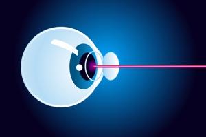 Um die Fehlsichtigkeit korrigieren zu können, muss vor der Laserbehandlung eine dünne Schicht der Hornhaut abgetrennt werden.