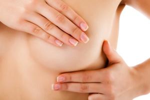 Die Bruststraffung gibt der weiblichen Brust Form und Spannkraft zurück