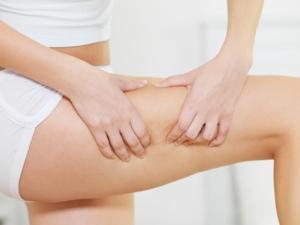 Orangenhaut ist ein typisches Frauenproblem. Moderne Cellulite-Therapien helfen.