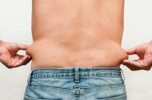 Lästige Fettpolster an Hüften, Bauch oder Beinen lassen sich mit einer Fettabsaugung effektiv beseitigen.